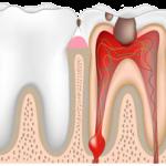 Воспаление нерва - пульпит, вылечить в стоматологической клинике