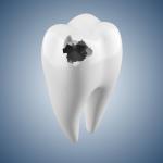 Вылечить кариес в стоматологической клинике