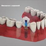 Штифтовкладки для восстановления коронки зубов