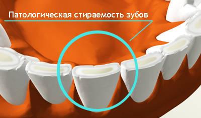 Повышенная стираемость зубов