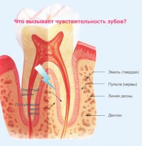 Повышенная чувствительность зубов