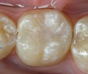 В нашей клинике можно сделать герметизация фиссур зубов