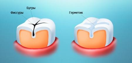 Герметизация фиссур предотвращает появления кариеса