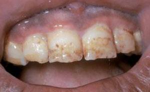 Наследственные нарушения развития зубов