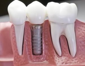 Импланты в стоматологии