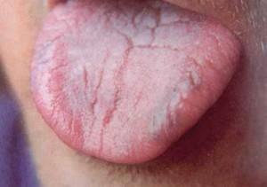 Налета на языке первый признак болезни